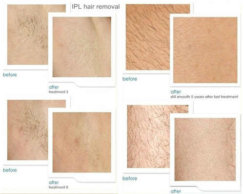IPL Hair Removal