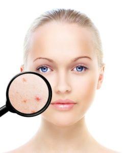 acne treatments, hertfordshire, essex