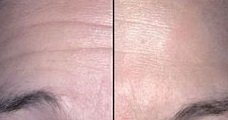 botox treatments in essex and hertfordshire