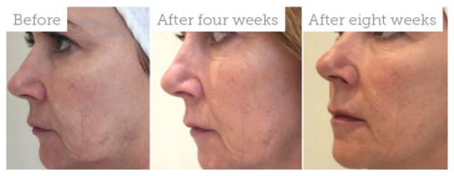 profhilo skin boosting injections, hertfordshire and essex skin clinic