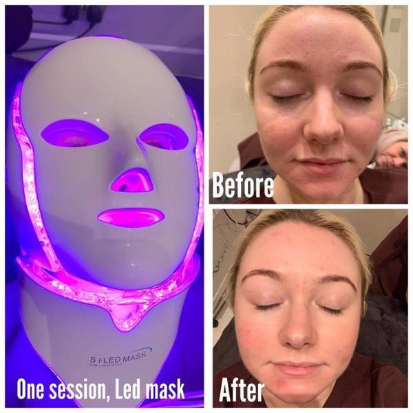 LED MASK, ANTI AGEING TREATMENTS, SKIN CLINIC AT URBAN SPA IN BISHOPS STORTFORD, HERTS AND ESSEX