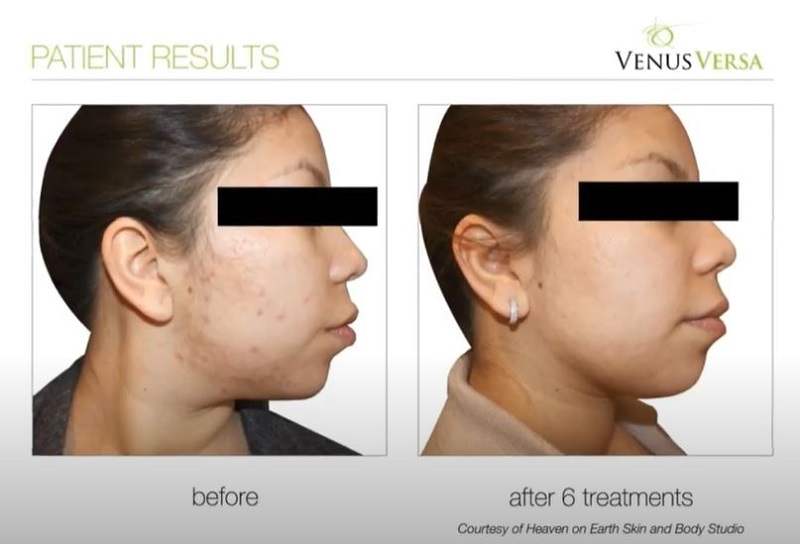 ACNE TREATMENTS WITH VENUS VERSA, The Best Anti-Ageing Salon in Hertfordshire and Essex