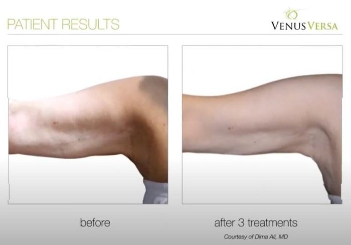 BINGO WING REDUCTION, Venus Versa Treatments, The Skin Clinic at Urban Spa in Bishop's Stortford, Hertfordshire