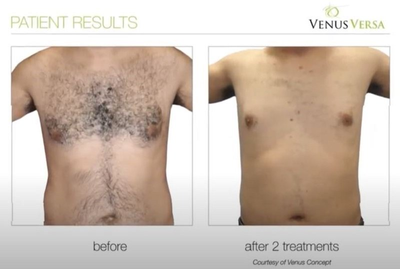 HAIR REMOVAL WITH VENUS VERSA, The skin clinic at urban spa beauty salon in bishop's stortford, hertfordshire
