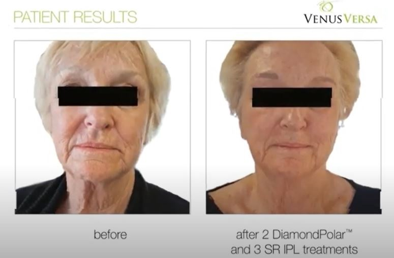 anti ageing treatments, venus versa, Skin clinic at urban spa in bishop's stortford, hertfordshire