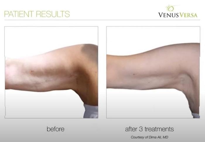 BINGO WING REDUCTION, Venus Versa Treatments, The Skin Clinic at Urban Spa in Bishop's Stortford, Hertfordshire
