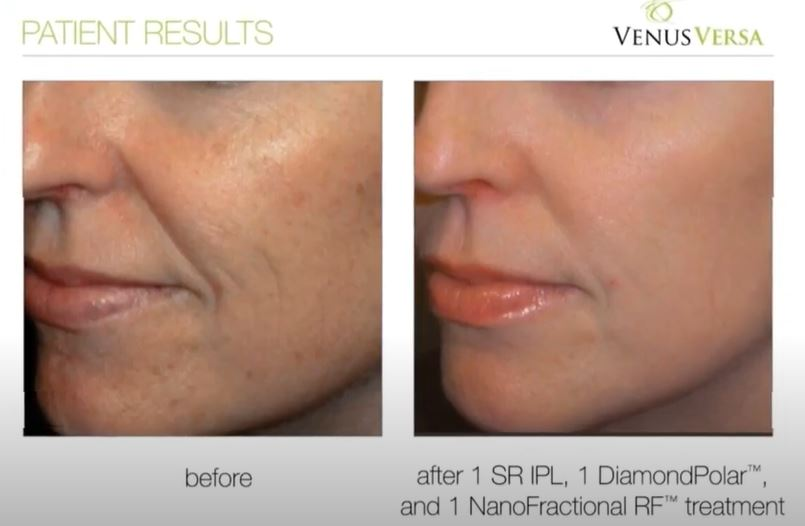 Skin Pigmentation Treatments, Venus Versa, Top Skin Clinic in Hampshire