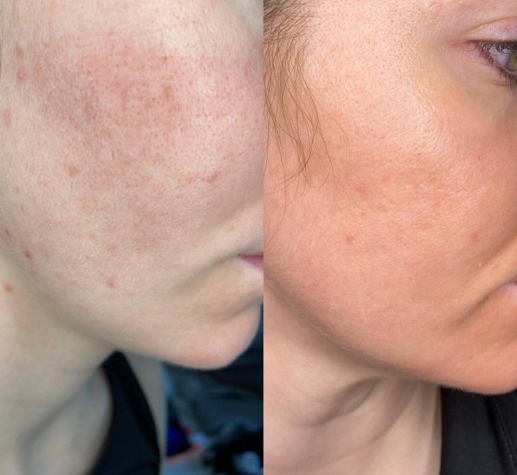 before and after venus versa skin resurfacing skin clinic at urban spa in bishops stortford hertfordshire