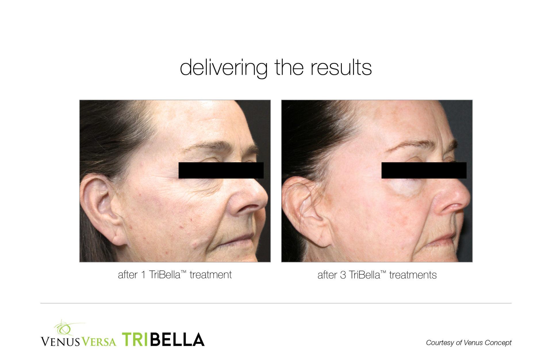 Venus Versa TriBella Facial Treatments, Anti-Ageing at Top Skin Clinic in Bishop's Stortford, Hertfordshire
