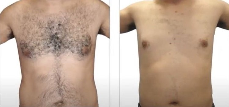 HAIR REMOVAL WITH VENUS VERSA 1