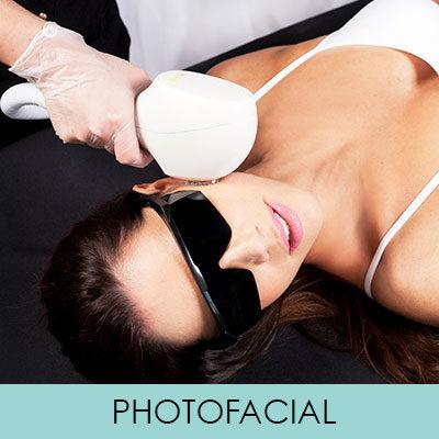 PHOTOFACIAL anti-ageing Venus Versa Treatments, Skin Clinic at Urban Spa, Bishop's Stortford, Hertfordshire