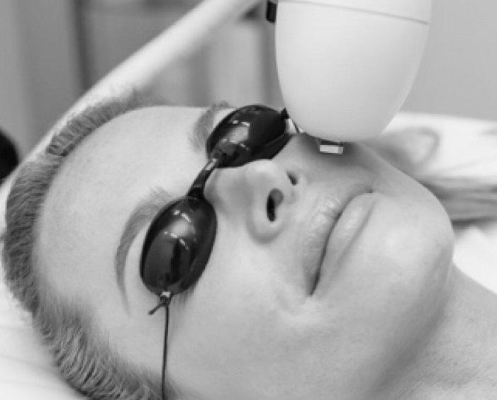 venus versa photofacials, skin clinic at urban spa in bishops stortford, hertfordshire