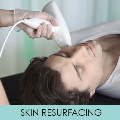 Venus Versa Skin Resurfacing