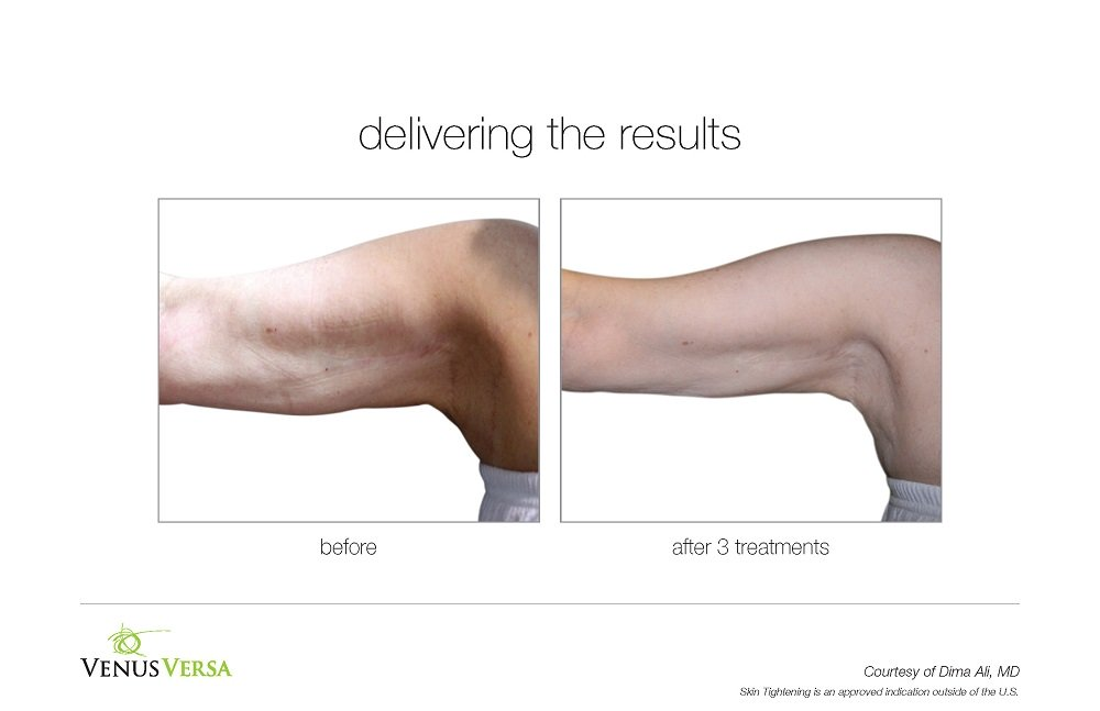VENUS VERSA CELLULITE TREATMENTS, BEST BEAUTY SALON IN BISHOPS STORTFORD, HERTS
