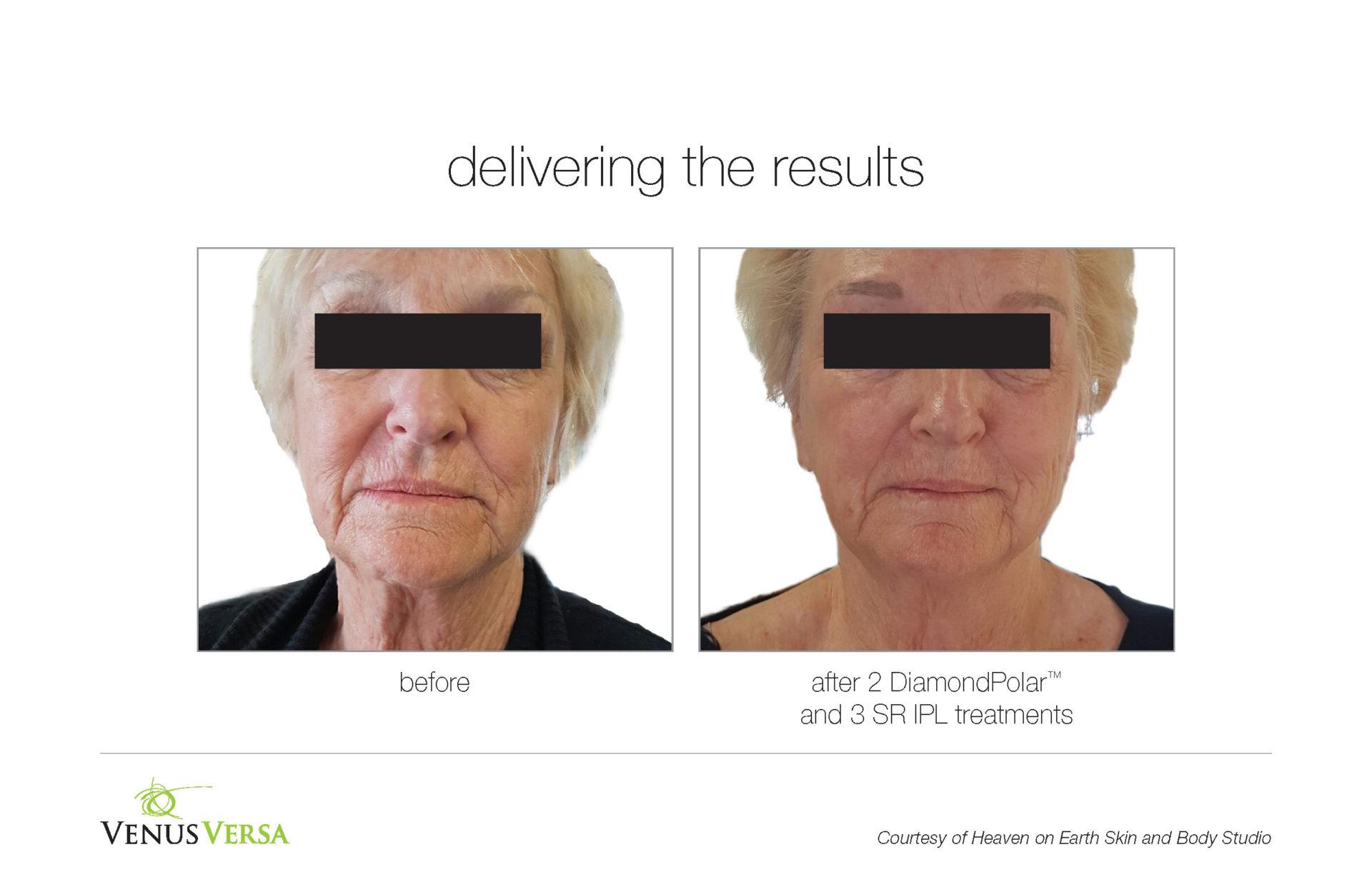 VenusVersa Wrinkle Reduction Treatments In Hertfordshire and Essex