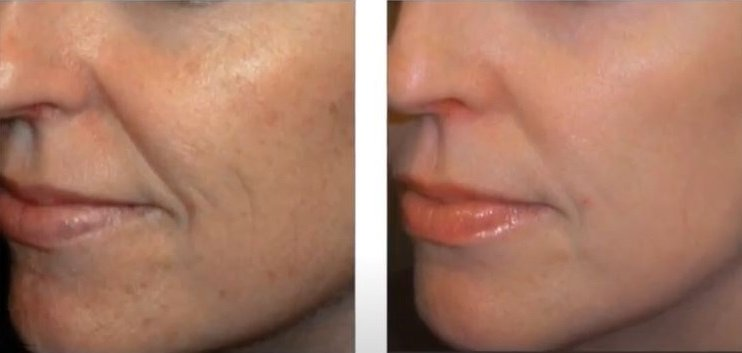 sKIN PIGMENTATION TREATMENTS IN HERTFORDSHIRE - VENUS VERSA, SKIN CLINIC IN BISHOPS STORTFORD