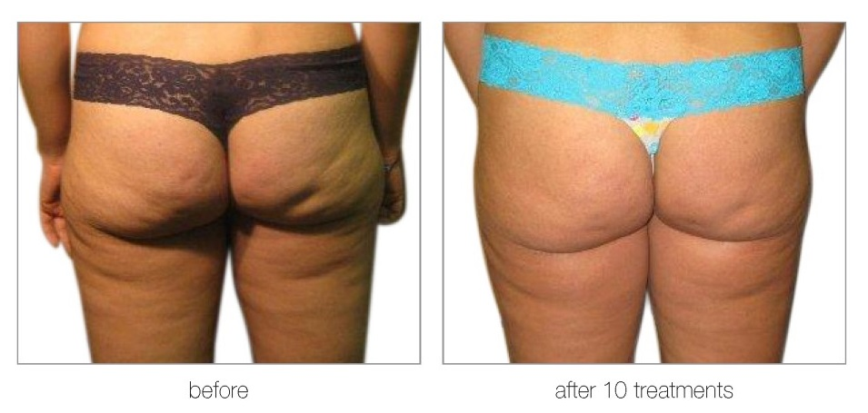 venus versa cellulite radio frequency treatments best beauty salon in hertfordshire Copy