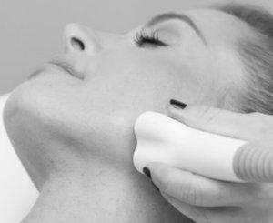 venus versa wrinkle reduction treatments in hertfordshire and essex