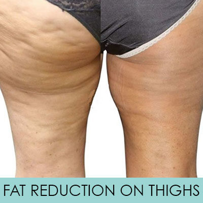 Venus Versa Body Contouring & Fat Reduction (Inner & Outer Thighs)