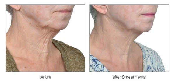 venus versa anti ageing face treatments at skin clinic in bishops stortford