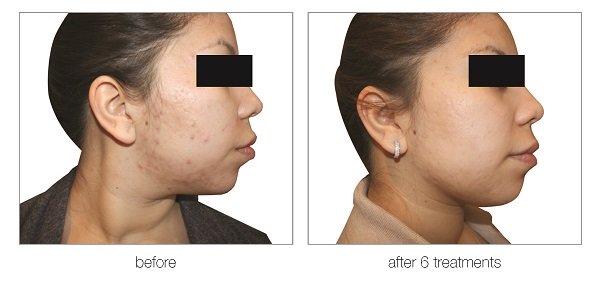 venus versa treatments for acne in hertfordshire