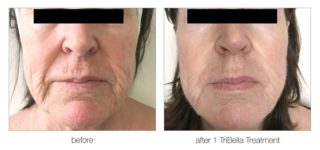 Effective Anti-Ageing Treatments