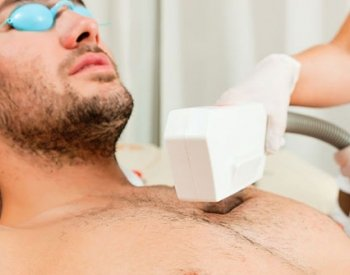 ipl-hair-removal-treatment