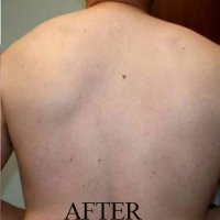 after-back-hair-removal-ipl