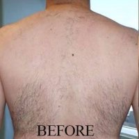 before-r-back-hair-removal-ipl