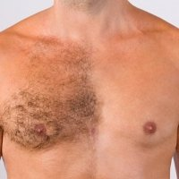 mens-ipl-chest-hair-removal